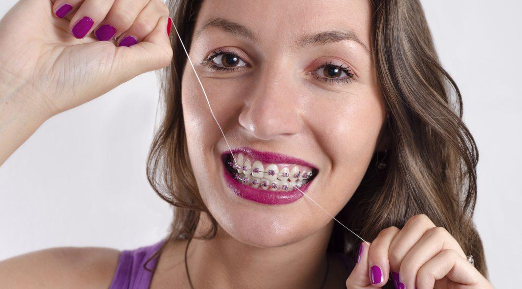 Good Oral Hygiene with Braces