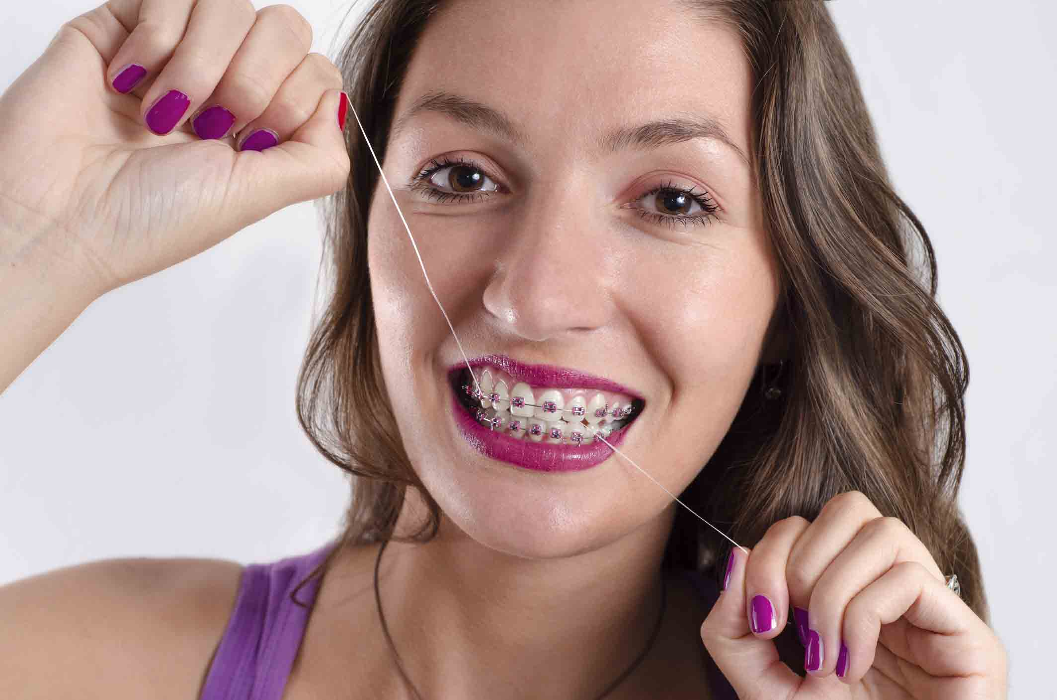 Good Oral Hygiene with Braces