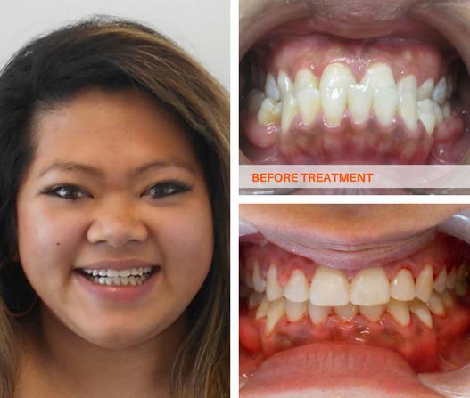 Orthodontic Surgery