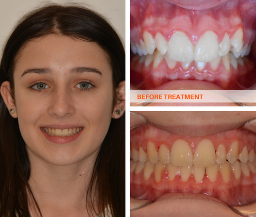 Overbite Braces Results