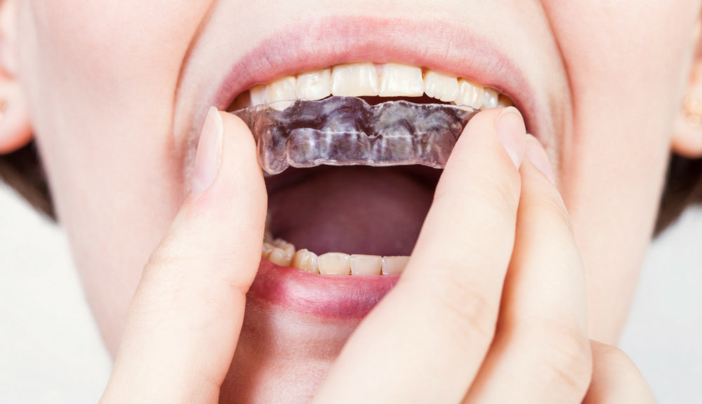 What Orthodontic Appliance is Right For Me?