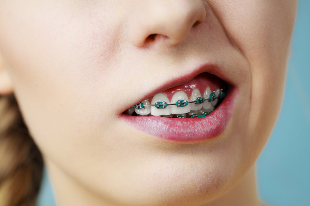 Orthodontics and Teenagers