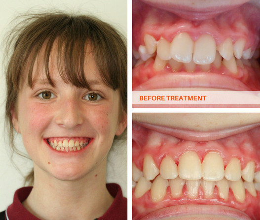 Full Braces Results