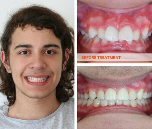 Straight Teeth Overbite