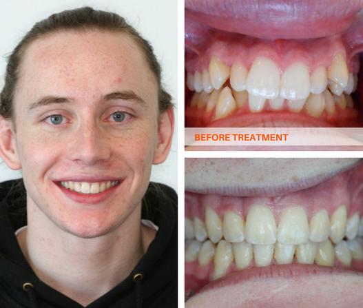 Premolar Teeth Braces