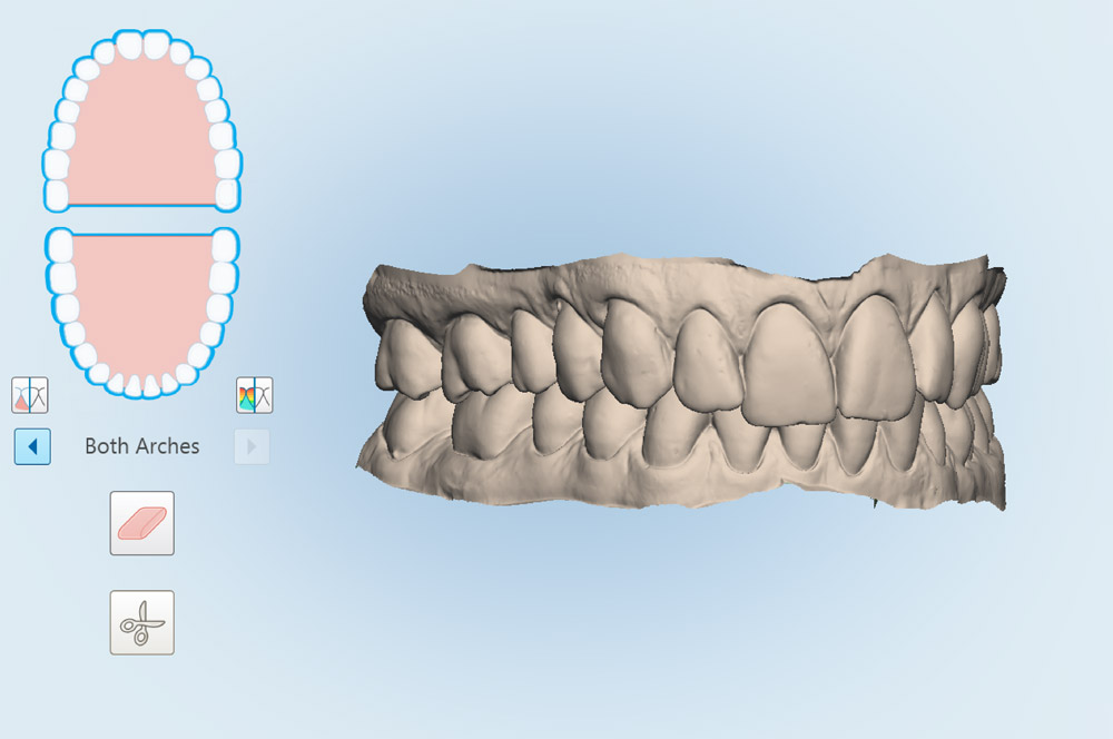 How 3D Technology Is Changing Orthodontics
