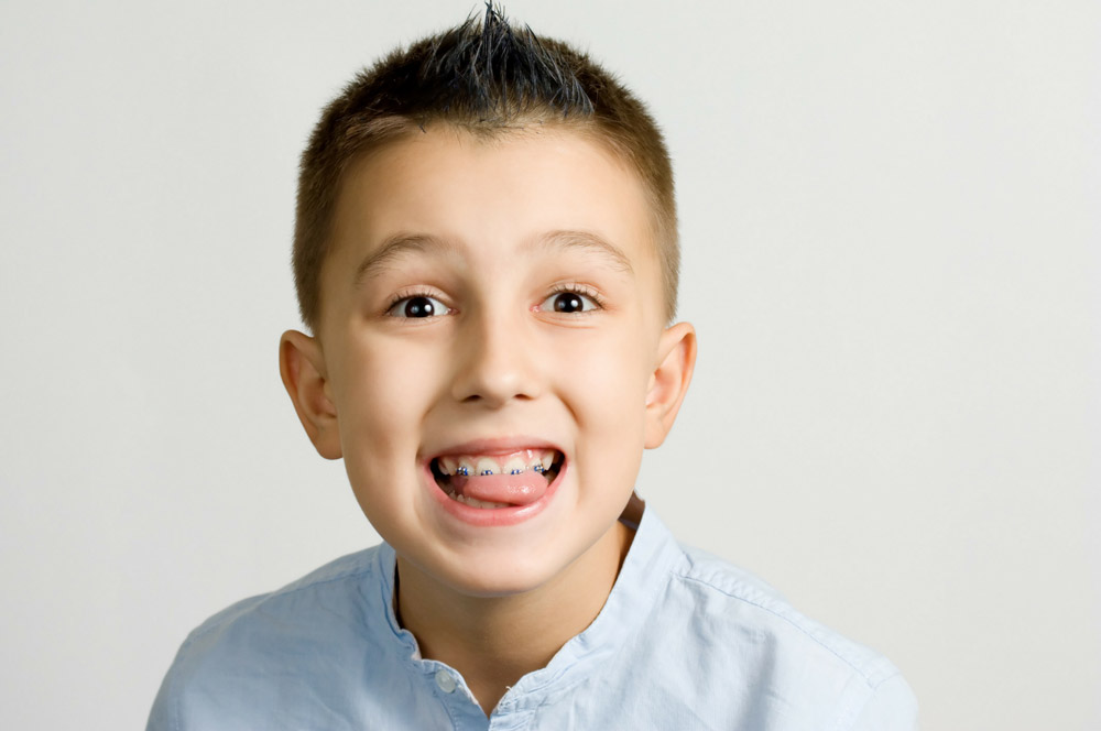 Does My Child Need Braces?