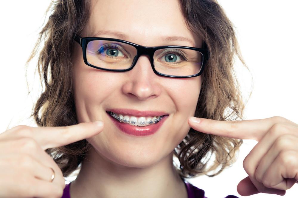 Adult Braces At iSmile Orthodontics