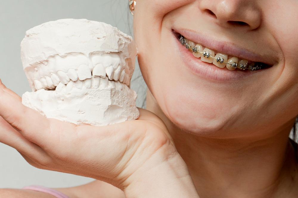 Correcting an overbite or underbite