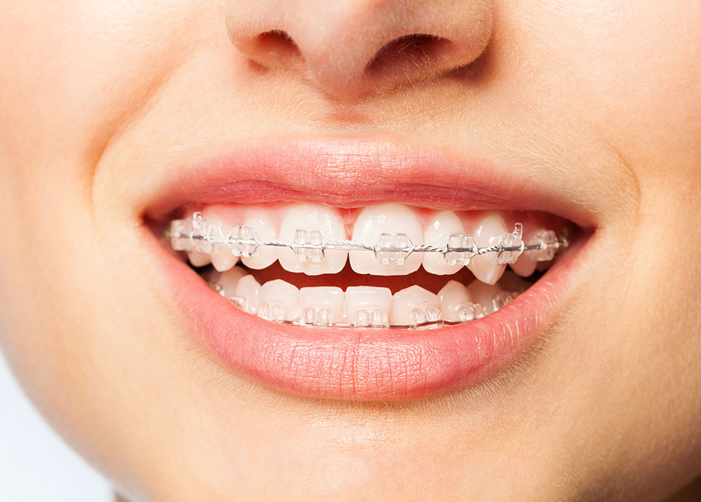 what foods can you eat with braces